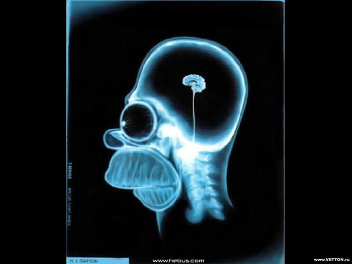 Brain.jpg (700x525, 59Kb)