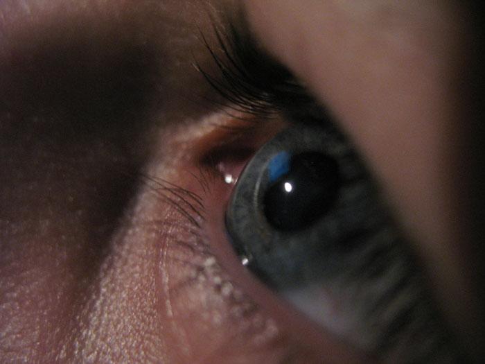 глаз.jpg (700x525, 74Kb)